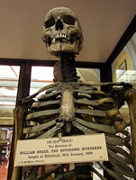 Skeleton of William Burke
