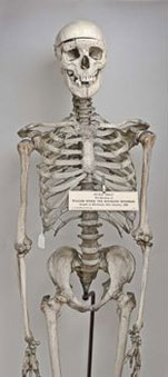 Skeleton of William Burke, in the Anatomical Museum of the University of Edinburgh