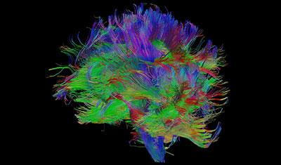 Multi-coloured image of the inside of the brain
