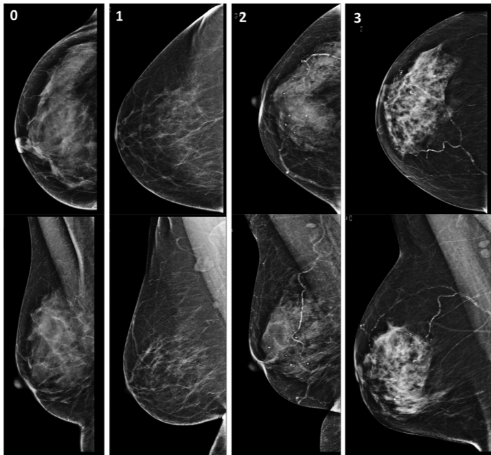 Breast arterial calcification on mammography and risk of coronary artery disease: a SCOT-HEART sub-study