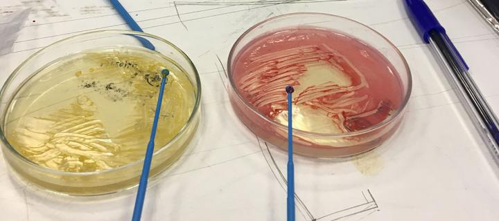 Bacteria spread on petrie dishes