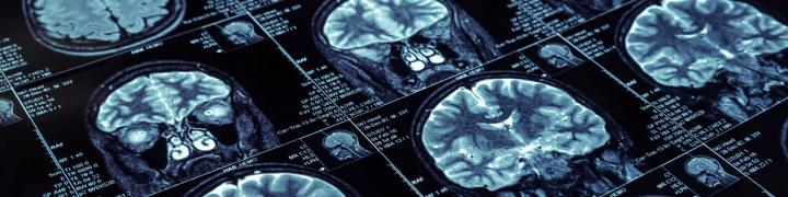 Neuropsychology study uk