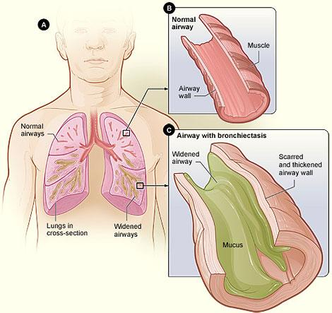 A cartoon showing the difference between an airway with and without bronchiectasis