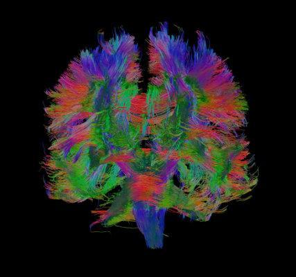 Brain white matter connections of an LBC1936 participant