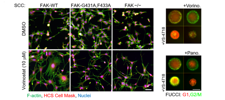 (PDF) Lovastatin inhibits VEGFR and AKT activation