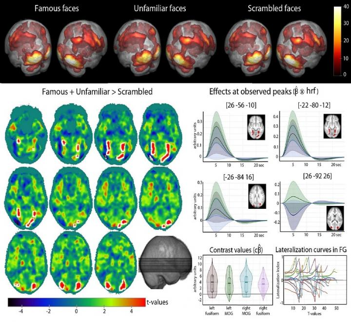 fMRI illustration of activations for faces