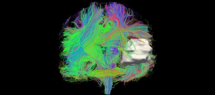 colour brain scan section
