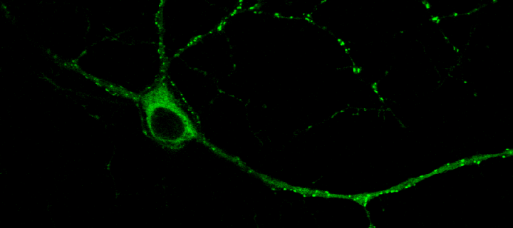 image of a cell showing NMDA receptor activity