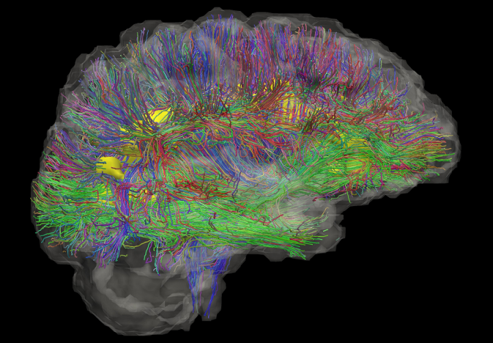 Tractography map of the brain's white matter using diffusion MRI