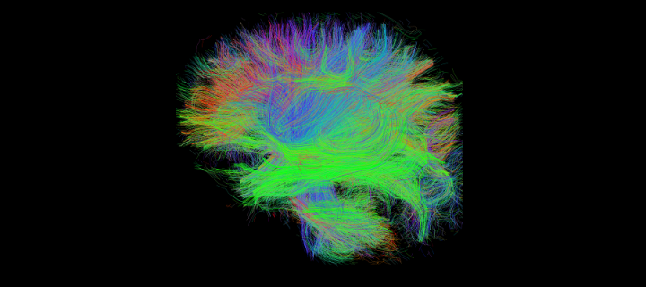 Baby brain pathways. Pathways in the baby brain identified by diffusion magnetic resonance imaging of a sleeping newborn.