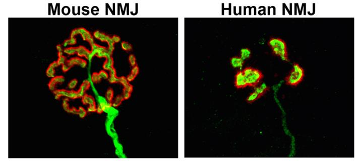Mouse NMJ compared to Human NMJ