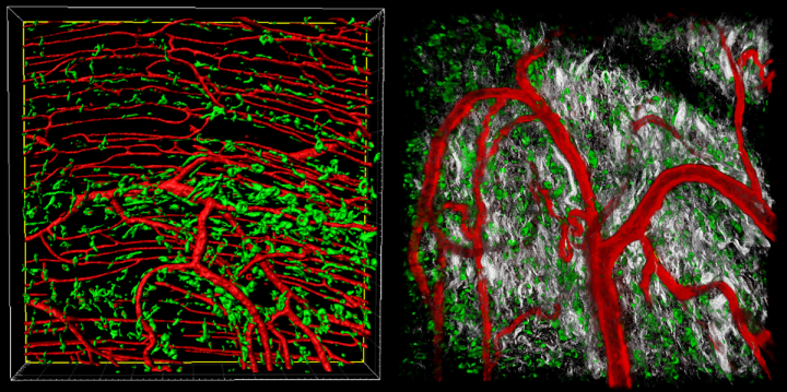 Multiphoton images of mouse skin wound with CD68+ macrophages (green), CD31+ blood vessels (red) and collagen (grey)