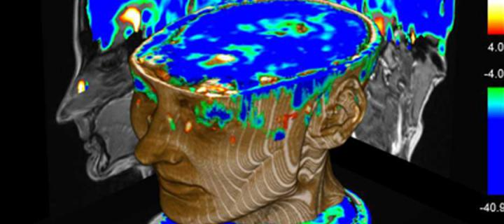 Psychiatric Disorders The University Of Edinburgh