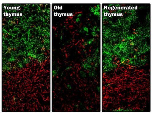 Young, old and regenerated thymus