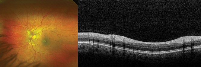 Retinal imaging up close