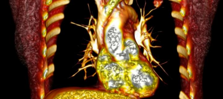 Volume rendered & colourised CT scan to enable visualization of the heart & adjacent structures.