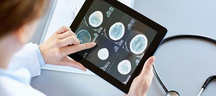 Photo of a doctor looking at a brain scan on a tablet computer