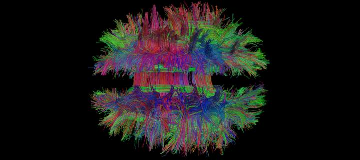 magnetic resonance image of the brain