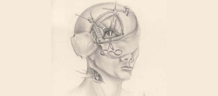 Pencil anatomy drawing of the head