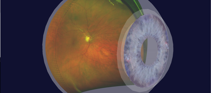 3D visualization of Retinal View