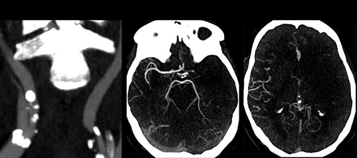 ACTATS Acute CTA for thrombectomy in stroke