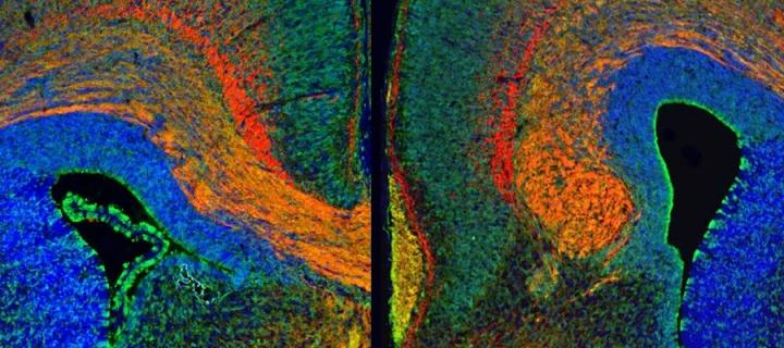 Close up of brain scan highlighted in multi colours