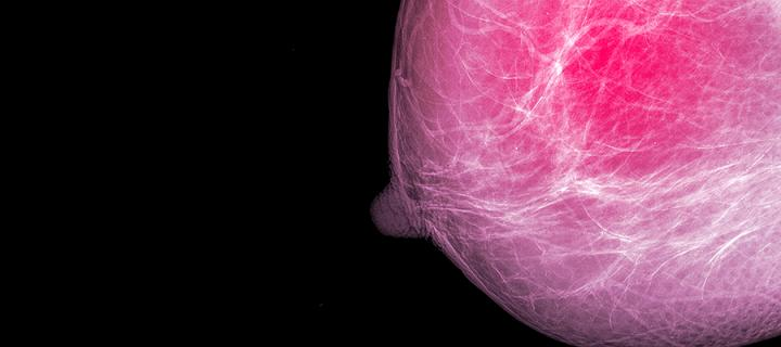 Breast density and implications for future imaging