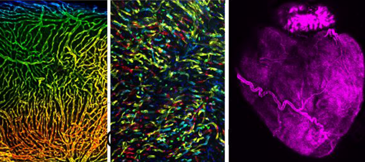 Combination of three images showing endothelial cells and heart muscle