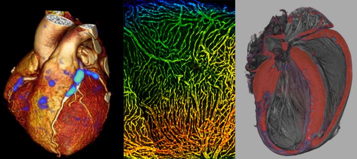 Combination of 3 images of Cardiovascular Injury, Repair & Regeneration
