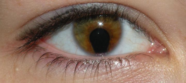 Coloboma of the iris in a 16 year old woman
