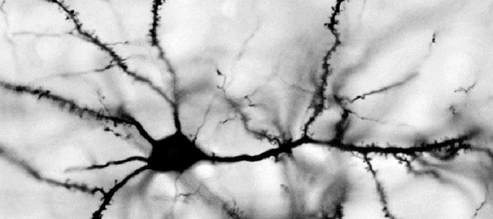 Image of a brain cell