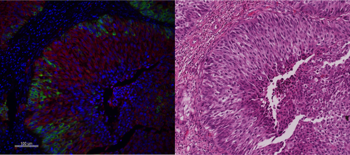 Mol Path Node comparative staining