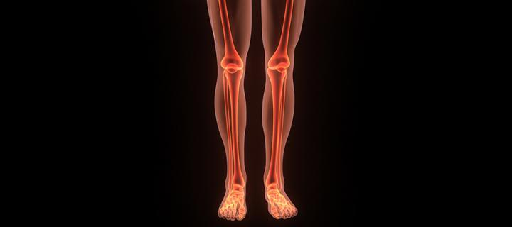 Drug does little to ease bone cancer pain