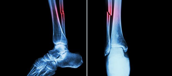 fractured bone
