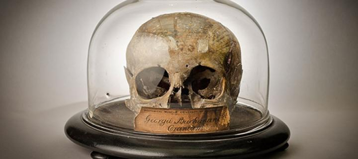 George Buchanan's skull