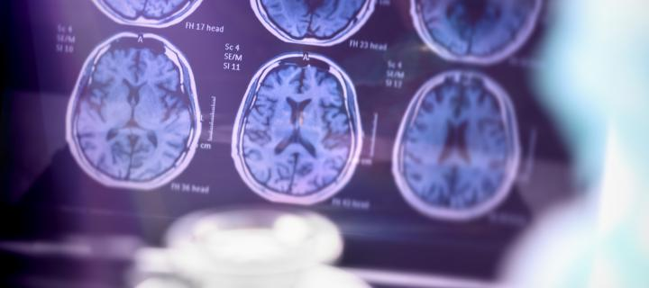 Survey to shape future dementia treatments