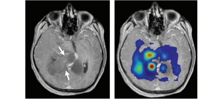 MRI images of glioblastoma (from Kao et al. BioMed Res Int: 970586).