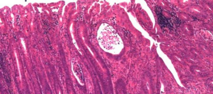 Microscope image of mouse intestine