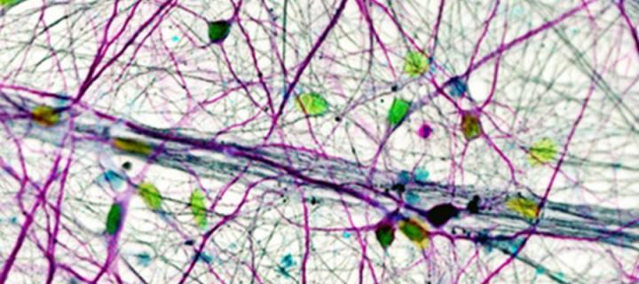 Human Cortical Neurons