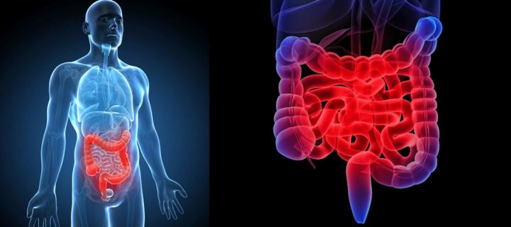 A 3D graphic of a human highlighting where the bowel is.