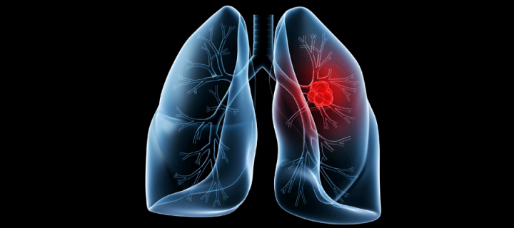 Artistic image of lung disease