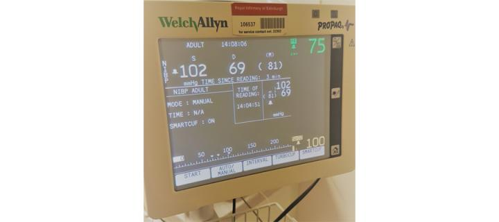 image of blood pressure monitoring screen