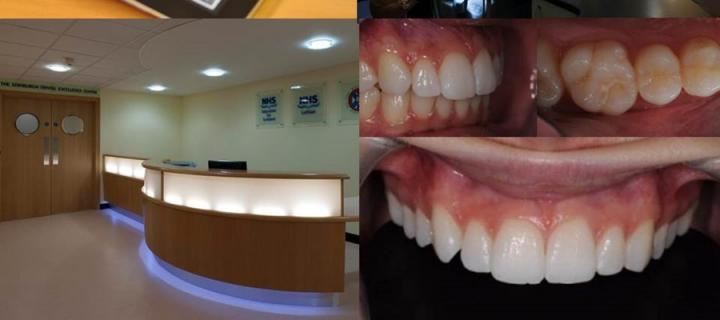 Image is a composite of multiple images showing interior of EDI and anterior teeth