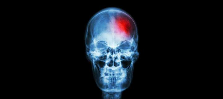 Image of skull x-ray with red patch