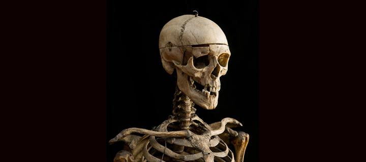 William Burke's skeleton