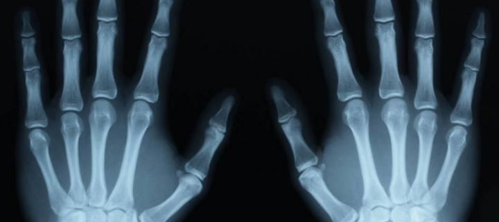 X-ray image of two hands