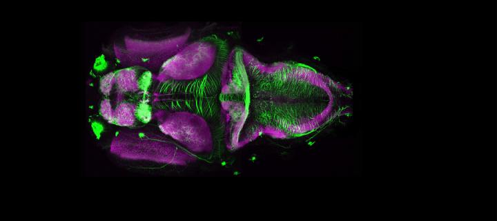 microscope image of a zebrafish brain