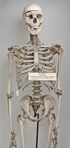 William Burke skeleton